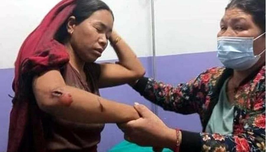 लमजुङमा भूकम्प, चार जना घाईते, केही घर भत्कियो